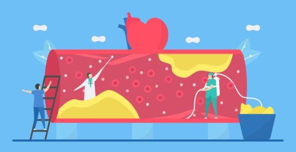 Tipy pro snížení cholesterolu